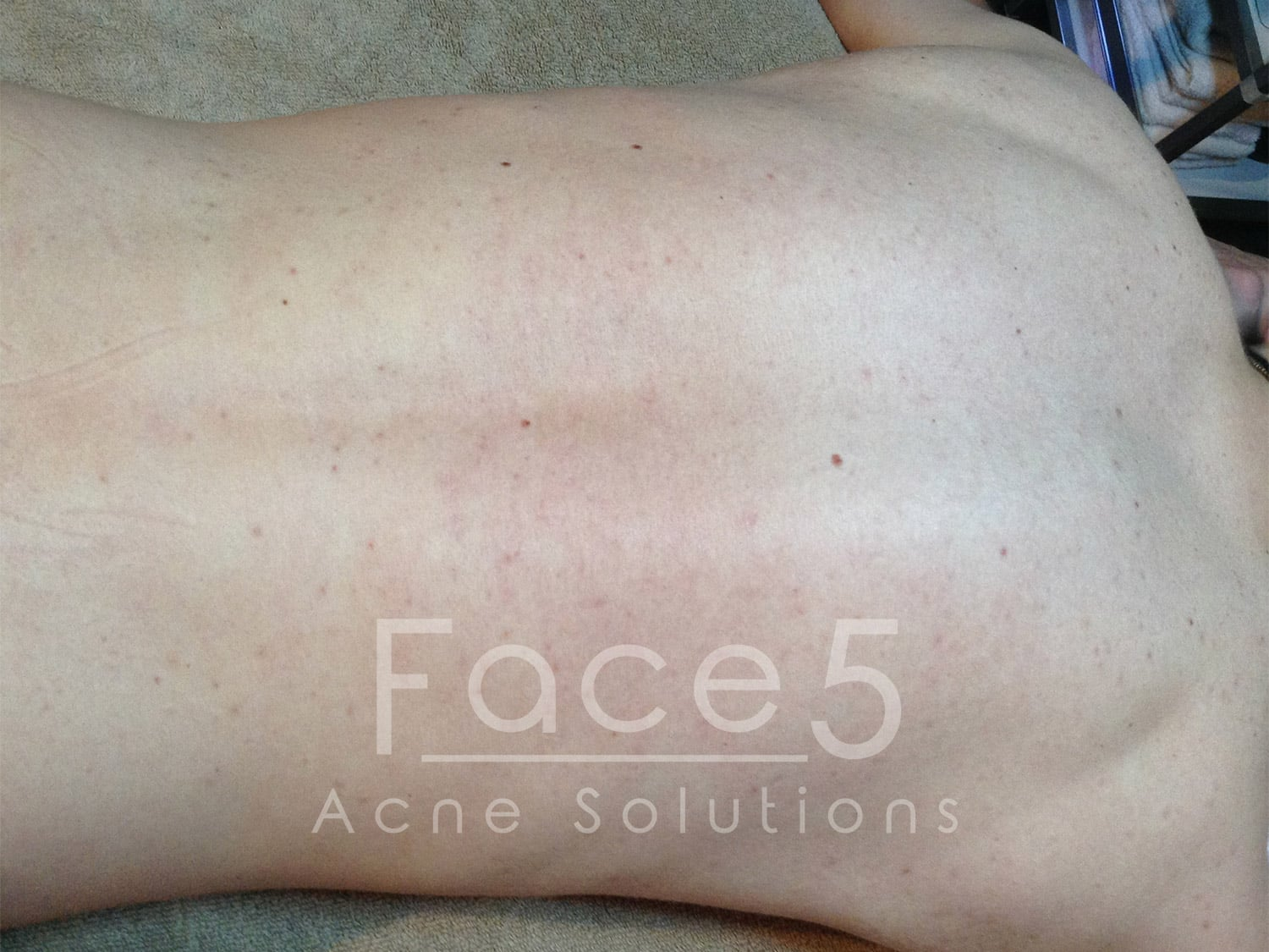 Inflamed Back Acne - After