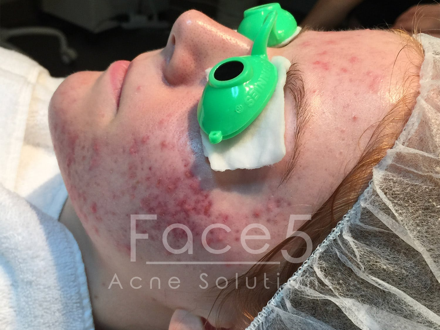 Inflamed Acne - Before