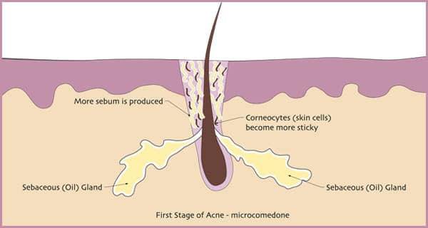 first-stage-of-acne