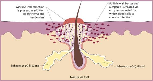 nodule-cyst